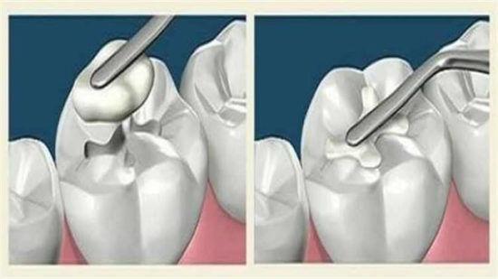 Ученые изобрели вечную пломбу, которая сама будет лечить зуб!